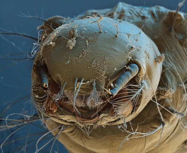 Begini wajah jentik-jentik nyamuk